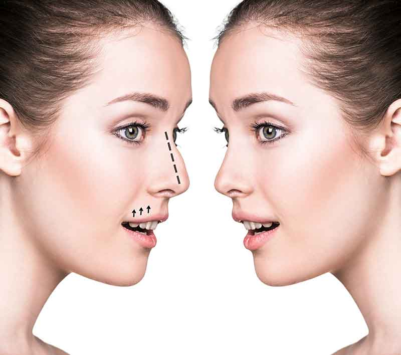Plastic surgery for nose 1