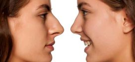 Revision nose surgery