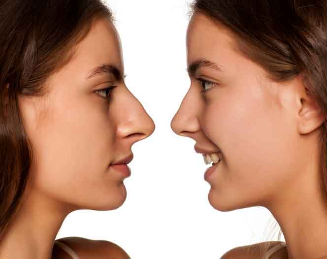Revision nose surgery 1