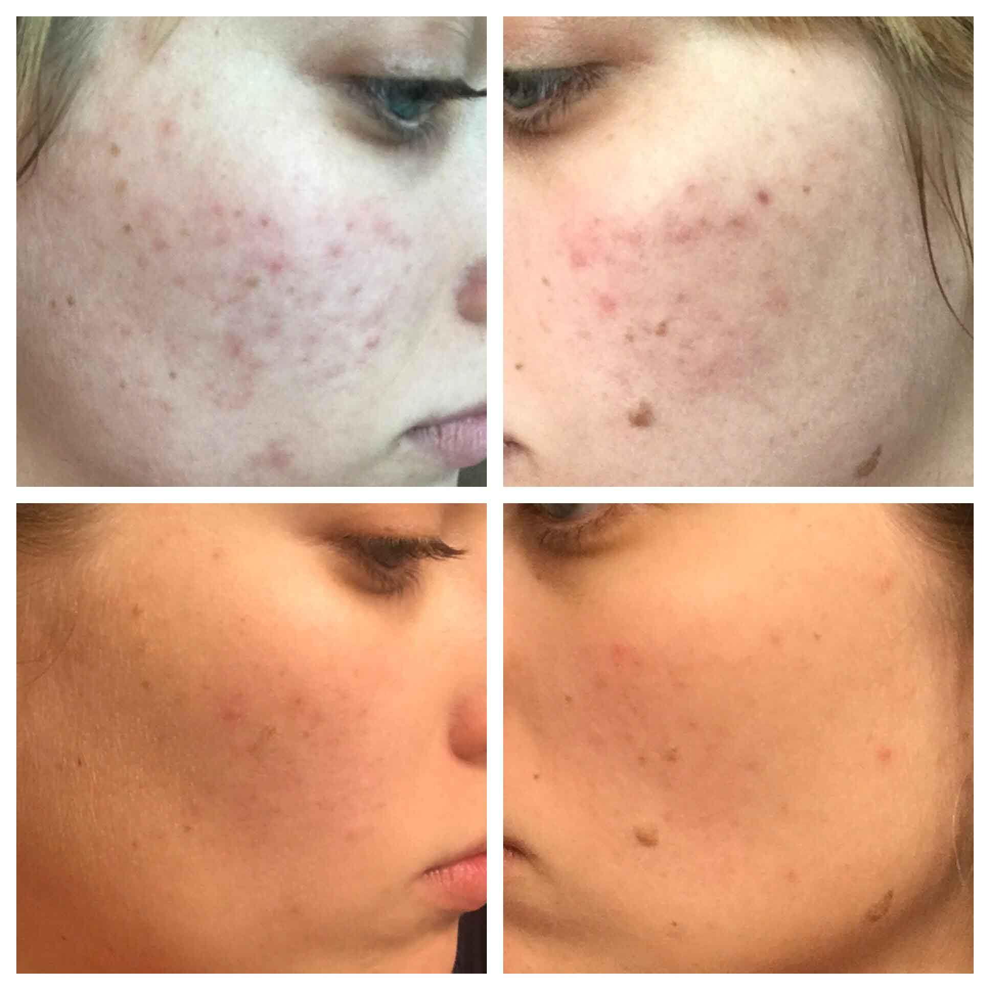 Tria beauty before and after 11