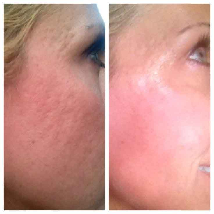Tria beauty before and after 7