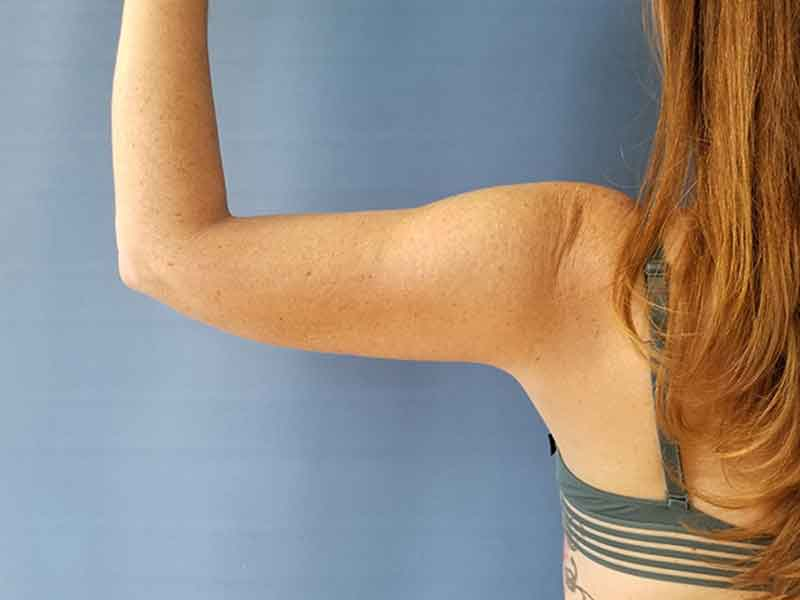 Arm liposuction recovery 2