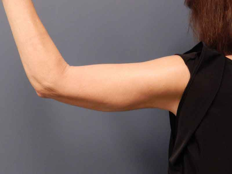 Arm liposuction recovery 3