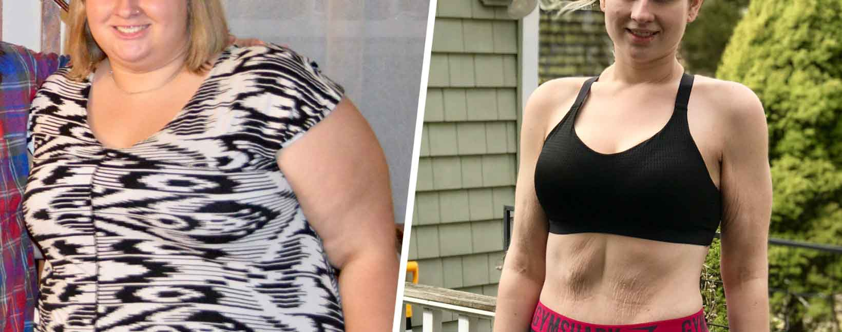 Diet before and after lap band surgery 15