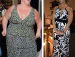 diet-before-and-after-lap-band-surgery