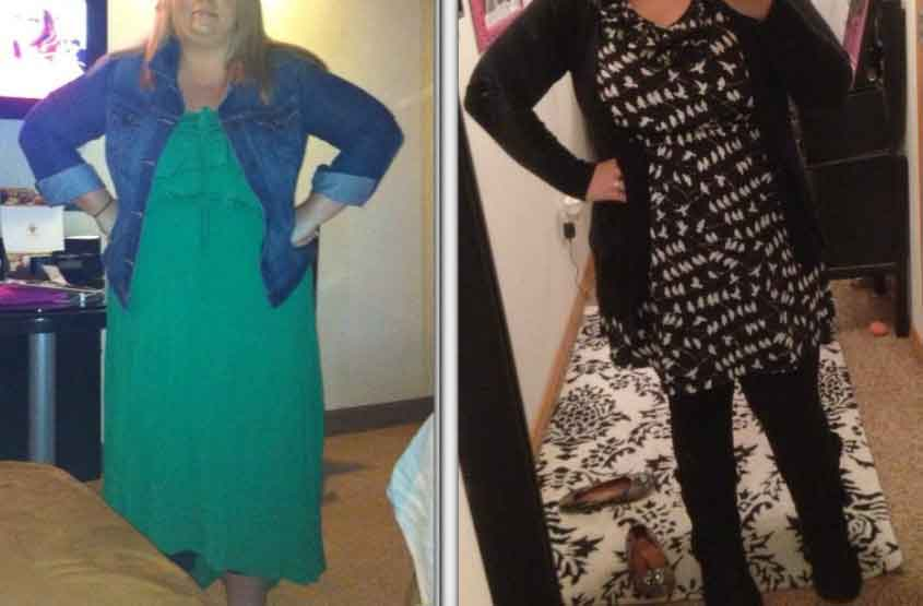 Diet before and after lap band surgery 4