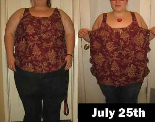 Diet before and after lap band surgery 5