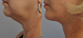 Neck liposuction dublin