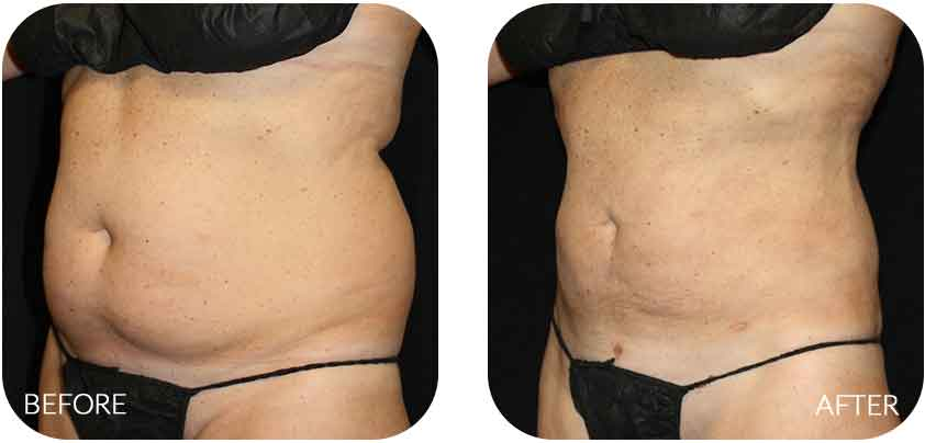 Abdominal liposuction pain 5