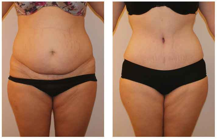 Abdominal liposuction pictures 1