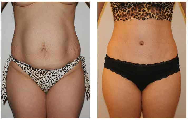 Abdominal liposuction pictures 3