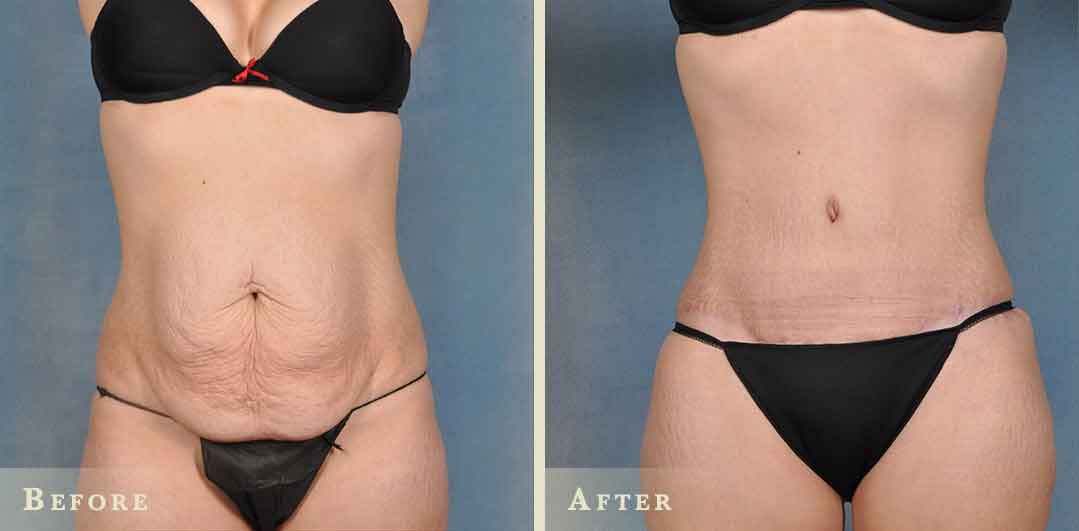 Abdominal liposuction surgery 2