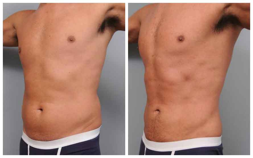 Abdominal liposuction surgery 3